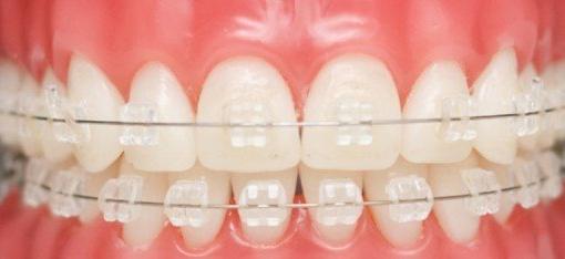 Niềng răng mắc cài trong suốt và 3 vấn đề bạn cần biết