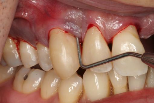 [Hỏi đáp] Lấy cao răng giá bao nhiêu là hợp lý nhất?